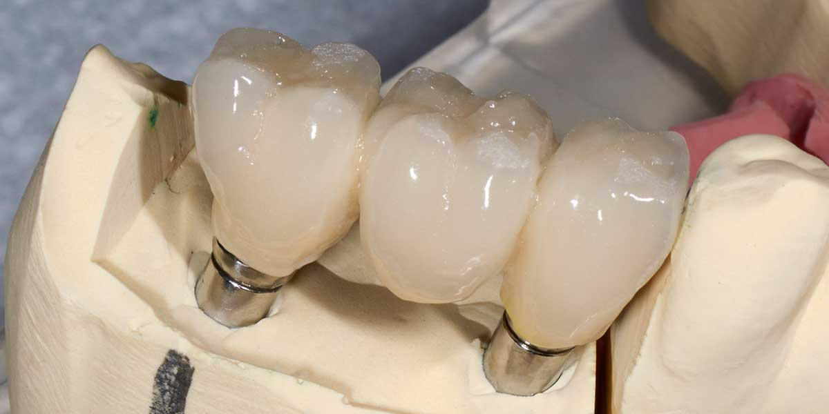Dental Implant Supported Bridge in NJ
