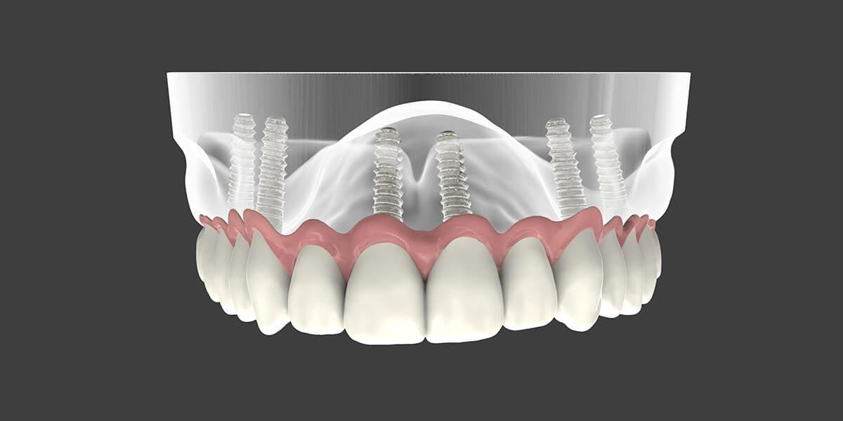 Dental Implant Supported Dentures in NJ