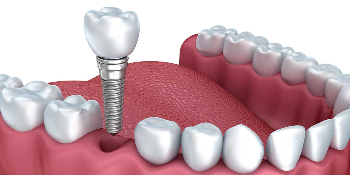 Single Dental Implants in Wayne, NJ