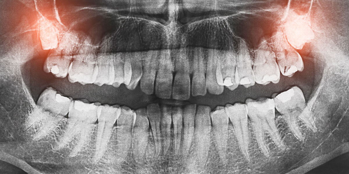 xray showing impacted wisdom teeth