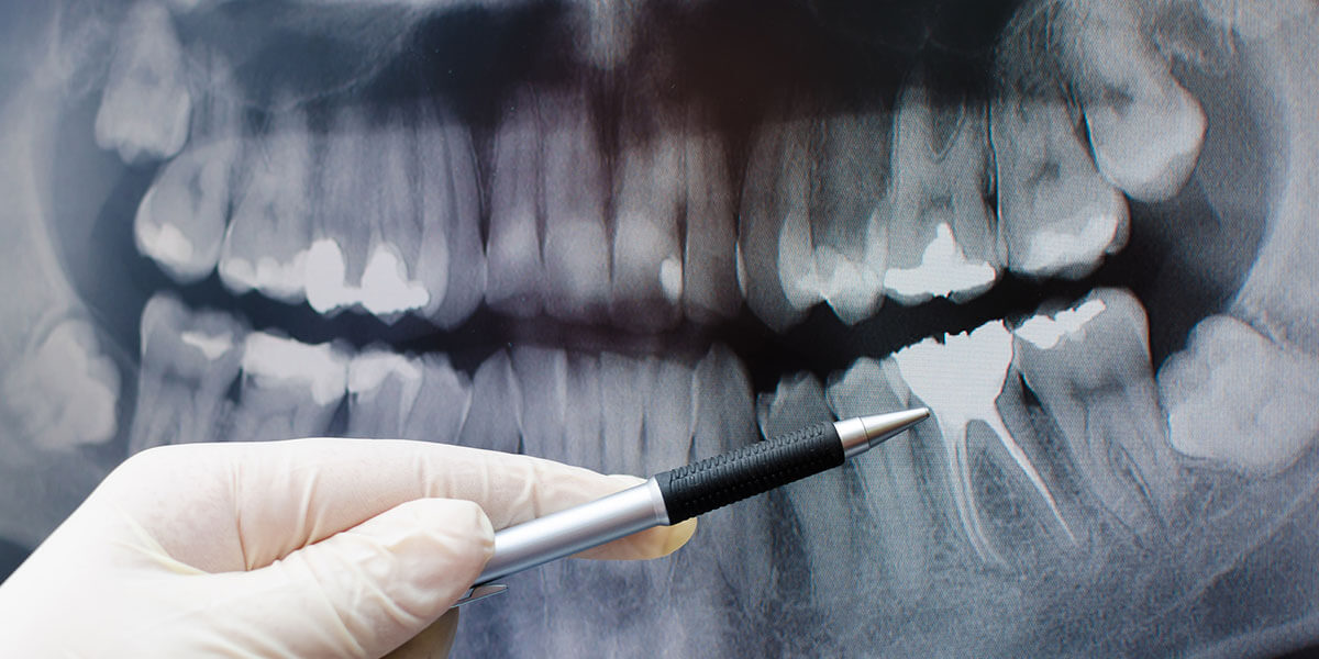 Guided Dental Implant Placement in NJ